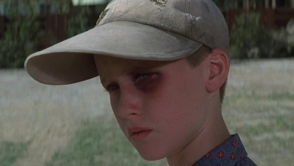 Smalls boasting a black eye Sandlot