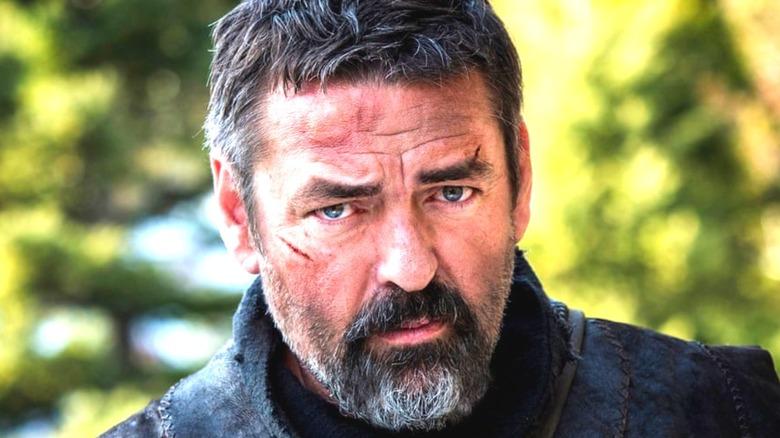 Robert the Bruce scar on face