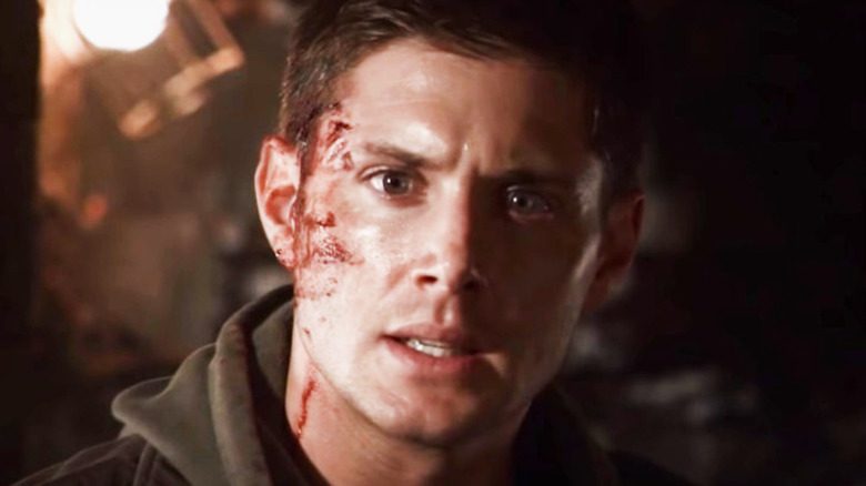 Jensen Ackles with blood on his face